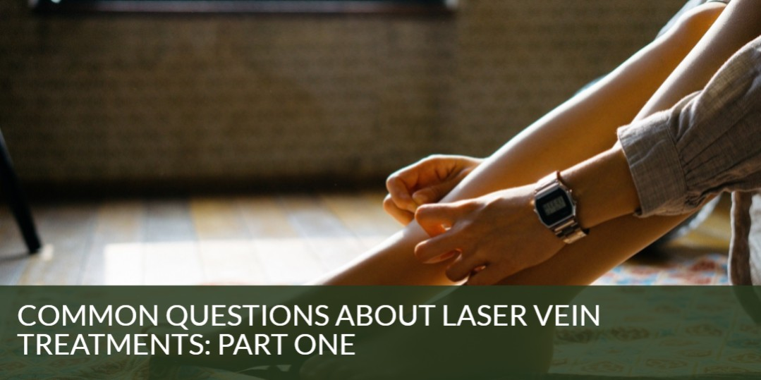 Common Questions About Laser Vein Treatments: Part One