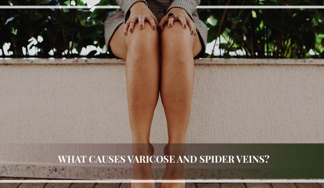 What Causes Varicose and Spider Veins?