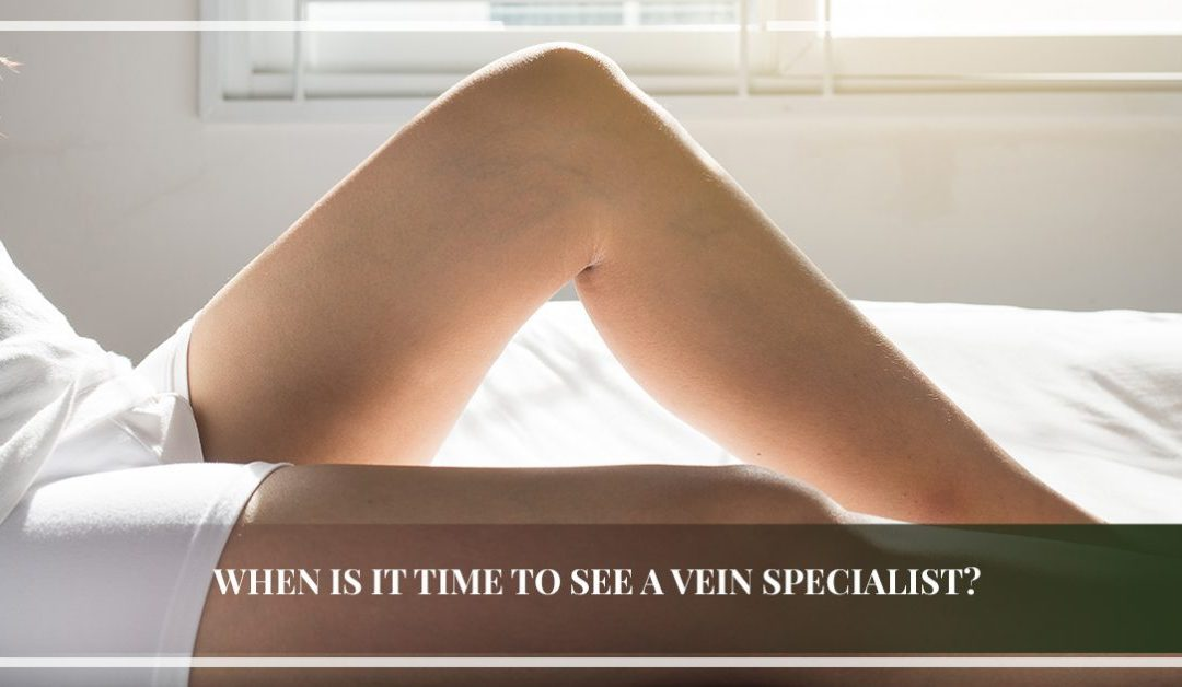When Is It Time to See a Vein Specialist?